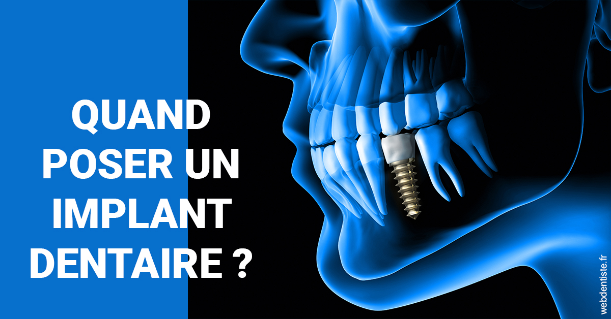 https://dr-aubry-marie-pierre.chirurgiens-dentistes.fr/Les implants 1